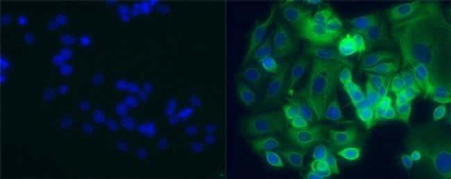 Cytokeratin 8 Mouse anti-Human, FITC, Clone: LP3K, eBioscience  100 µg;
