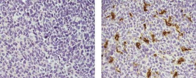 CD68 Mouse anti-Human, Biotin, Clone: 815CU17, eBioscience Invitrogen 100