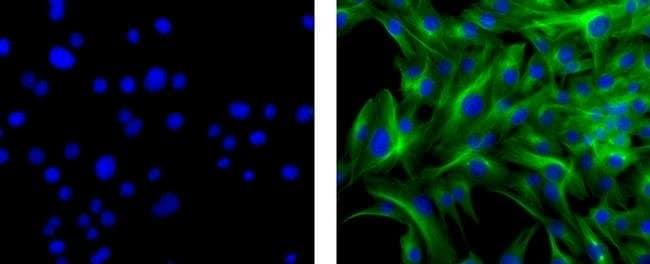 IgG1 Rat anti-Mouse, Biotin, eBioscience ::