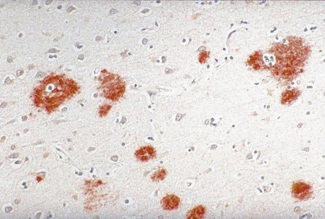 beta Amyloid Mouse anti-Human, Clone: LN27, Invitrogen 100 μg; Unconjugated:Antibodies