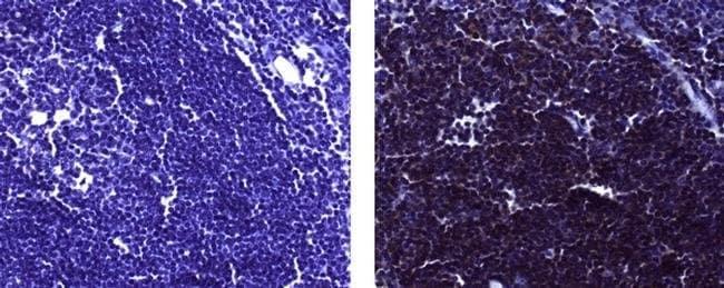 CD19, clone: LC1, eBioscience™ 25μg; Unconjugated CD19, clone: LC1, eBioscience™