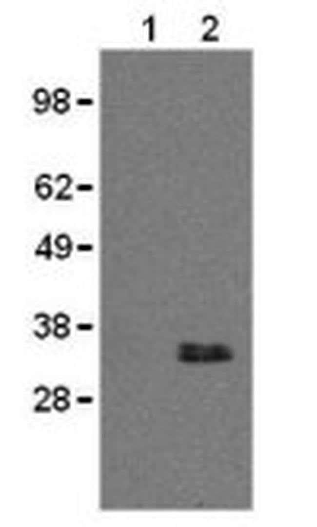CD20 Rat anti-Mouse, Clone: AISB12, eBioscience™ 100 μg; Unconjugated CD20 Rat anti-Mouse, Clone: AISB12, eBioscience™