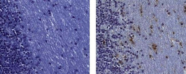 CD68 Mouse anti-Human, Clone: KP1, eBioscience™ 100 μg; Unconjugated CD68 Mouse anti-Human, Clone: KP1, eBioscience™