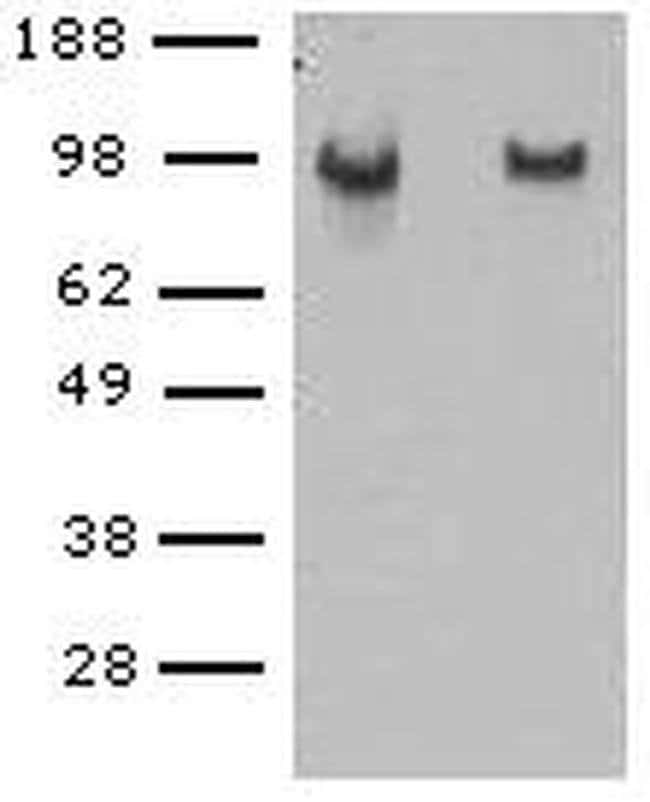 CD144 (VE-cadherin) Rat anti-Mouse, Clone: eBioBV14 (BV14), eBioscience™ 100 μg; Unconjugated CD144 (VE-cadherin) Rat anti-Mouse, Clone: eBioBV14 (BV14), eBioscience™