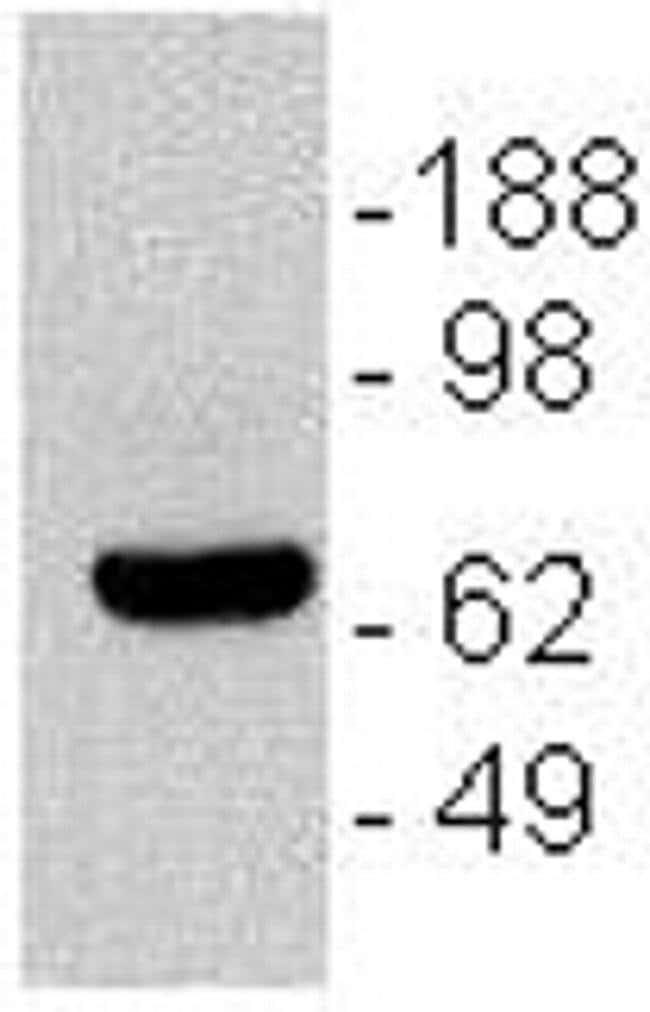 CD196 (CCR6) Mouse anti-Human, Clone: R6H1, eBioscience ::