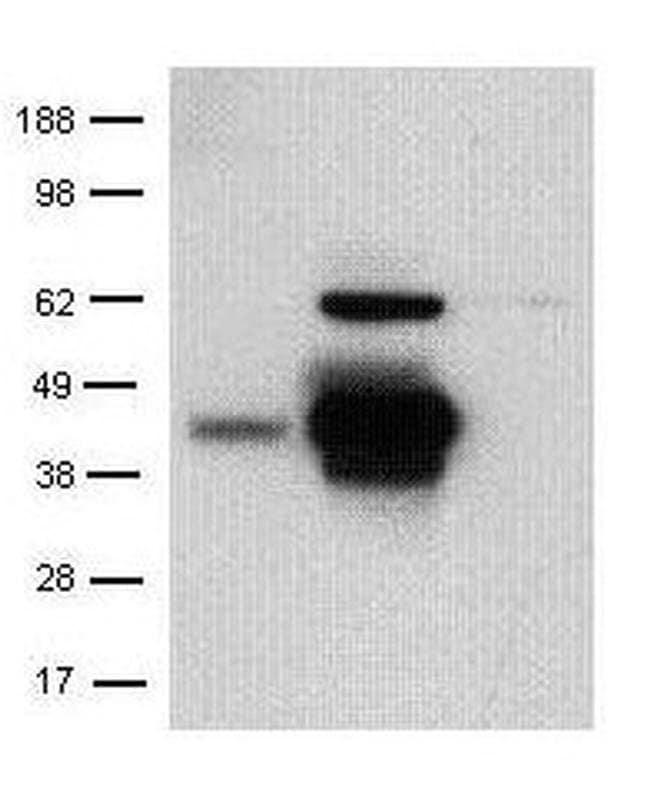 CD207 (Langerin) Rat anti-Mouse, Clone: eBioRMUL.2, eBioscience™ 100 μg; Unconjugated CD207 (Langerin) Rat anti-Mouse, Clone: eBioRMUL.2, eBioscience™