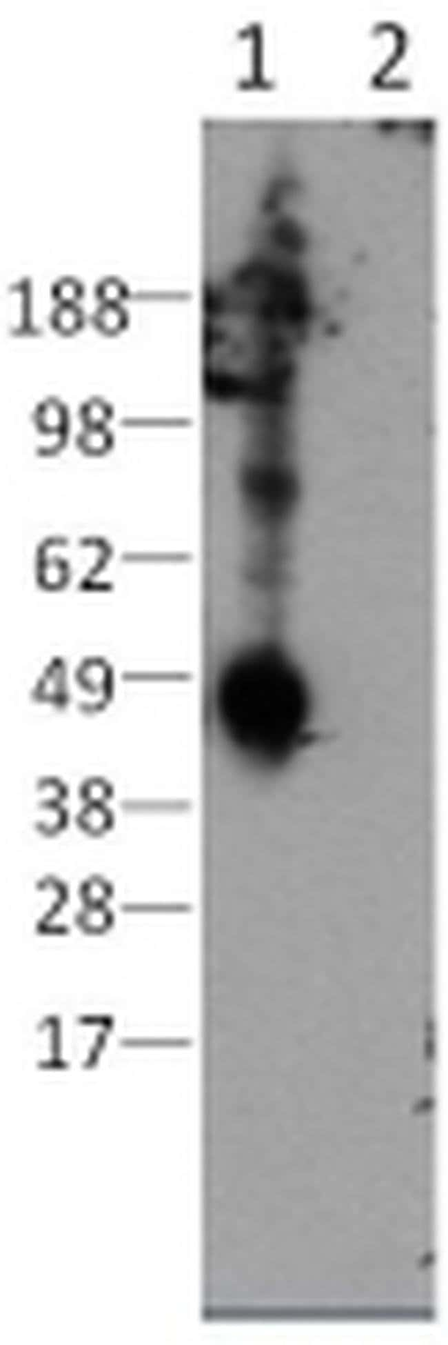 CD207 (Langerin) Rat anti-Mouse, Clone: eBioL31, eBioscience ::