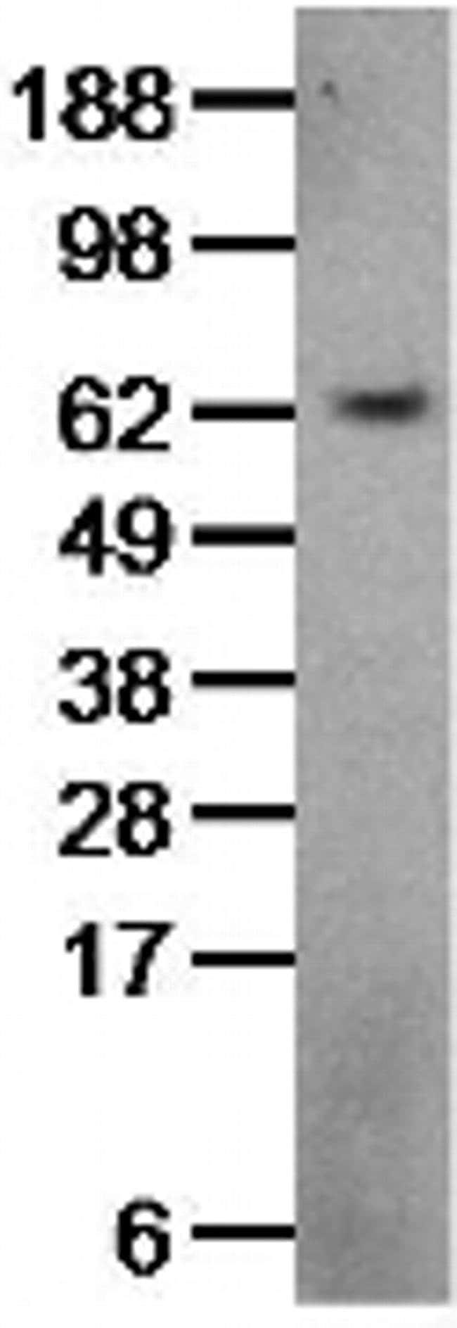 ACT1 Rat anti-Human, Clone: 9ACT12, eBioscience™ 100 μg; Unconjugated ACT1 Rat anti-Human, Clone: 9ACT12, eBioscience™