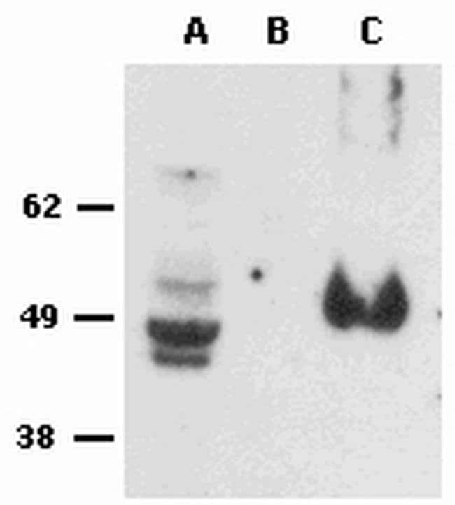 FOXP3 Rat anti-Chimpanzee, Cynomolgus Monkey, Human, Non-human primate, Rhesus Monkey, Clone: PCH101, eBioscience™ 25 μg; Unconjugated Products