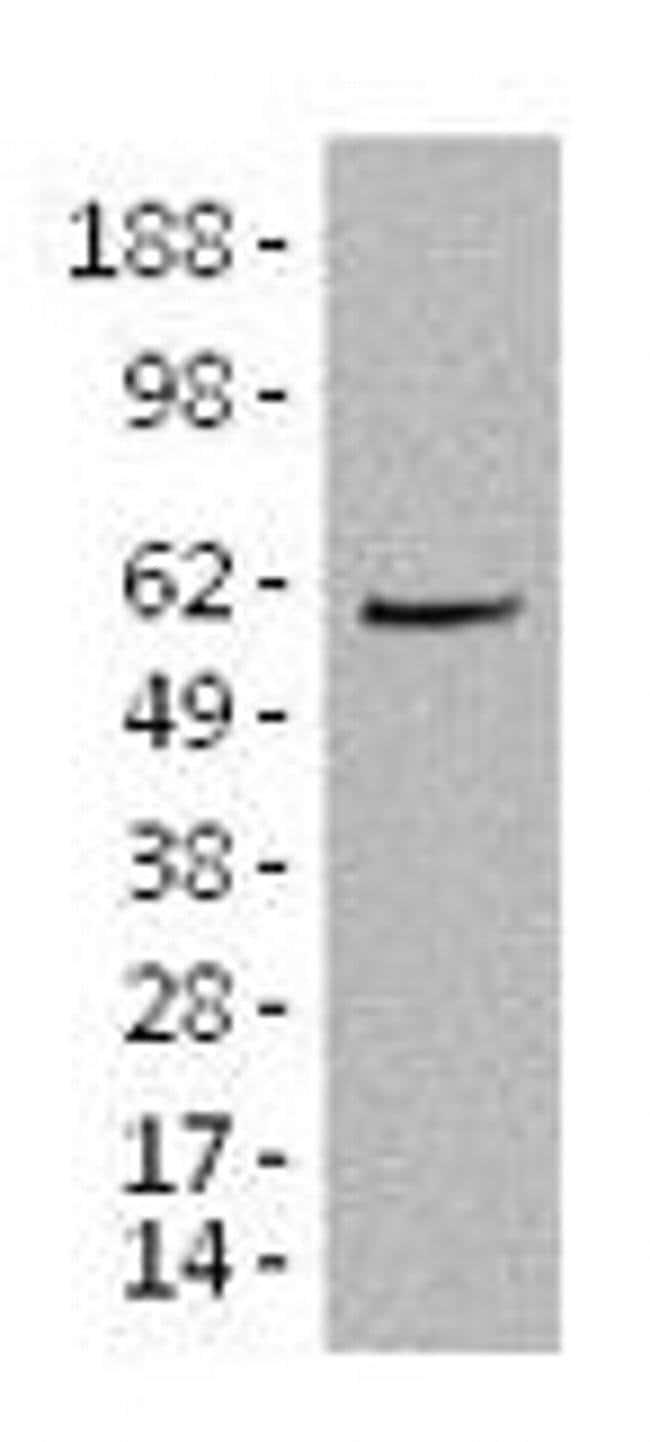 Aiolos Mouse anti-Mouse, Clone: 8B2, eBioscience™ 100 μg; Unconjugated Aiolos Mouse anti-Mouse, Clone: 8B2, eBioscience™