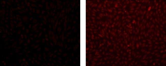 MASH1 Mouse anti-Mouse, Rat, Clone: 24B72D11, eBioscience ::