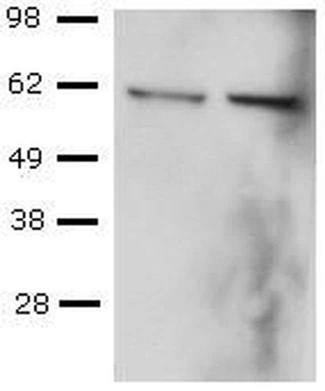 T-bet Mouse anti-Human, Mouse, Rat, Clone: eBio39D (39D, 3-9D), eBioscience™ 25 μg; Unconjugated T-bet Mouse anti-Human, Mouse, Rat, Clone: eBio39D (39D, 3-9D), eBioscience™