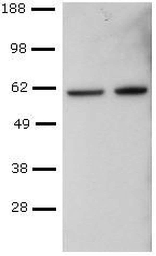 T-bet Mouse anti-Human, Mouse, Rhesus Monkey, Clone: eBio4B10 (4B10), eBioscience™ 100 μg; Unconjugated T-bet Mouse anti-Human, Mouse, Rhesus Monkey, Clone: eBio4B10 (4B10), eBioscience™
