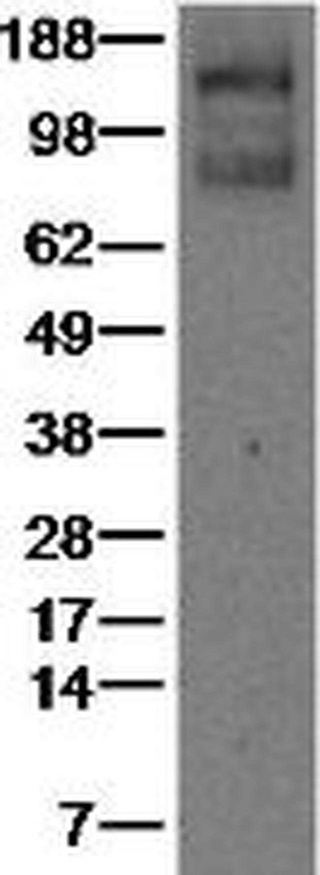 VEGF Receptor 1 (Flt1) Rat anti-Human, Clone: 7A6, eBioscience™ 25 μg; Unconjugated VEGF Receptor 1 (Flt1) Rat anti-Human, Clone: 7A6, eBioscience™