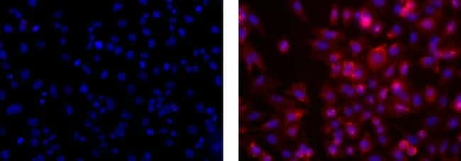 Neural/Glial Antigen 2 (NG2) Mouse anti-Human, Clone: 9.2.27, eBioscience™ 100 μg; Unconjugated Neural/Glial Antigen 2 (NG2) Mouse anti-Human, Clone: 9.2.27, eBioscience™
