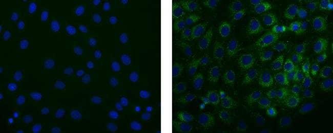 STRO-1 Mouse anti-Bovine, Human, Rat, Clone: STRO-1, eBioscience™ 25 μg; Unconjugated STRO-1 Mouse anti-Bovine, Human, Rat, Clone: STRO-1, eBioscience™