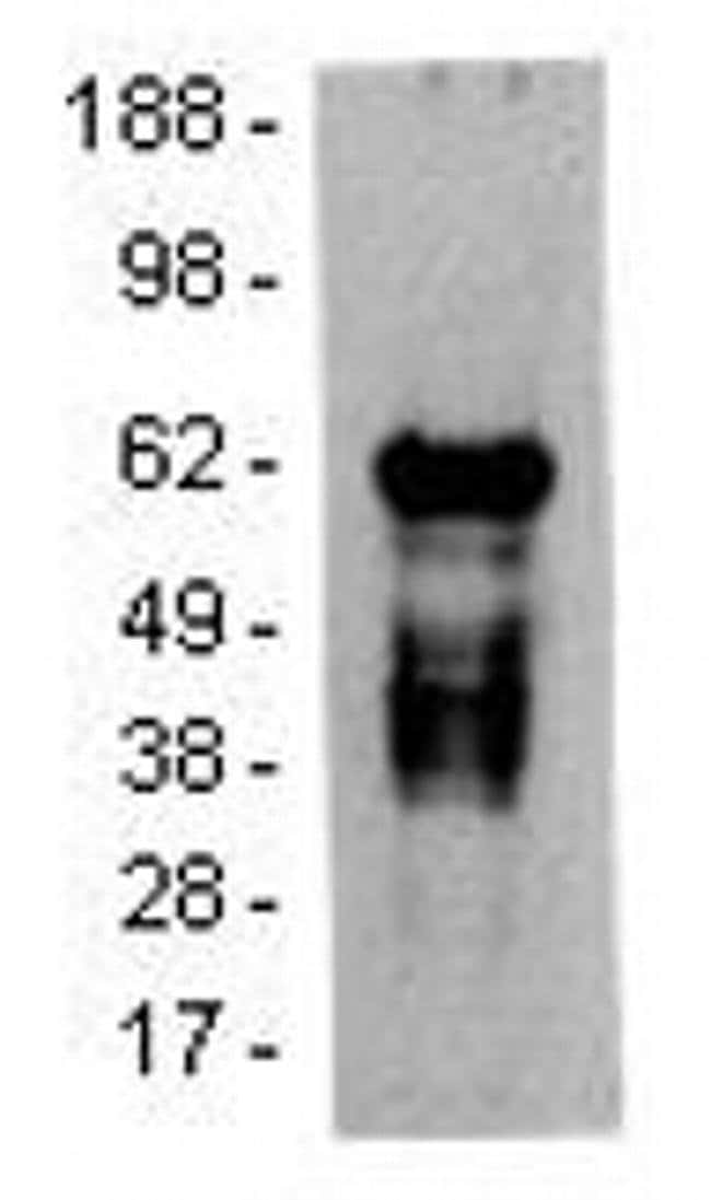 Syk Mouse anti-Human, Clone: 4D10.1, eBioscience  25 µg; Unconjugated