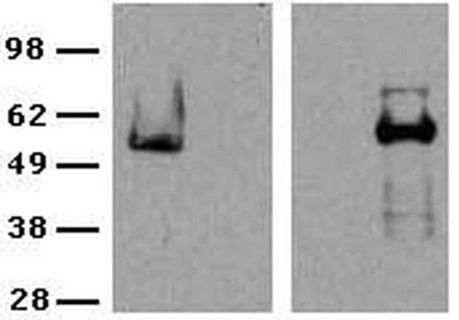 ROR gamma (t) Rat anti-Mouse, Clone: B2D, eBioscience  25 µg; Unconjugated