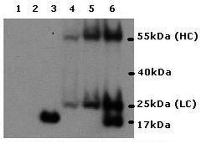 IL-17A Mouse anti-Human, Clone: eBio64CAP17, eBioscience™ 500 μg; Unconjugated IL-17A Mouse anti-Human, Clone: eBio64CAP17, eBioscience™
