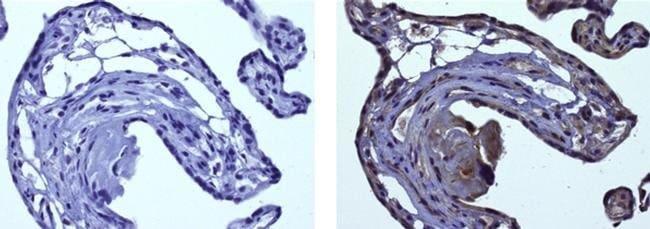 HIF-1 alpha Mouse anti-Bovine, Human, Mouse, Rat, Clone: ESEE122, eBioscience™ 25 μg; Unconjugated HIF-1 alpha Mouse anti-Bovine, Human, Mouse, Rat, Clone: ESEE122, eBioscience™