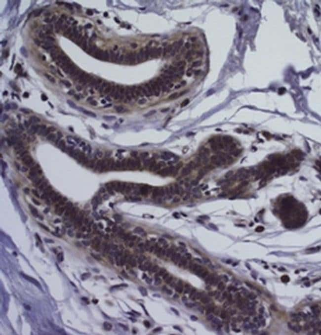 CD326 (EpCAM) Mouse anti-Human, Clone: 1B7, eBioscience  100 µg; Unconjugated