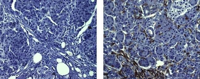 CD45 Mouse anti-Human, Clone: CD45-2B11, eBioscience Invitrogen:Antibodies:Primary