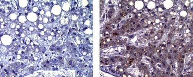 alpha-Fetoprotein, clone: 1E8, eBioscience™ 25μg; Unconjugated Primary Antibodies Fd to Fi