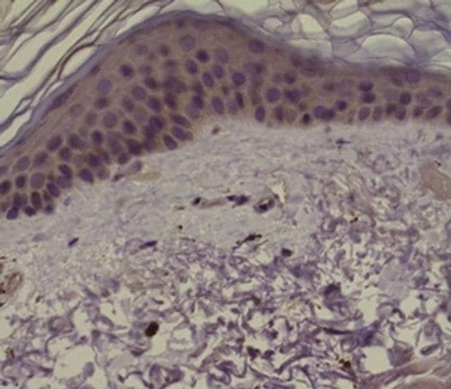 PAR2 Mouse anti-Human, Clone: SAM11, eBioscience  100 µg; Unconjugated