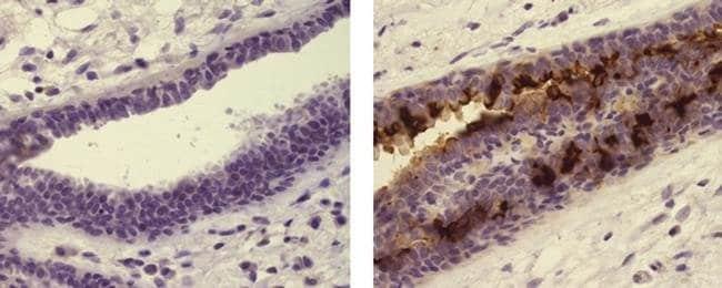 Globo H Mouse anti-Human, Clone: VK9, eBioscience™: Primary Antibodies - Alphabetical Primary Antibodies