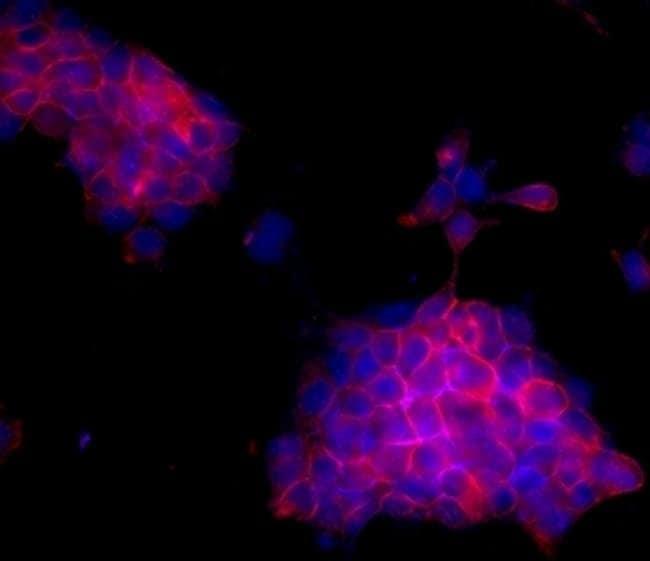 ErbB2 (HER-2) Mouse anti-Human, Clone: MJD2, eBioscience™ 25 μg; Unconjugated ErbB2 (HER-2) Mouse anti-Human, Clone: MJD2, eBioscience™