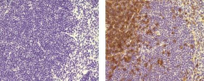 CD4 Rat anti-Mouse, Clone: 4SM95, eBioscience™ 25 μg; Unconjugated CD4 Rat anti-Mouse, Clone: 4SM95, eBioscience™