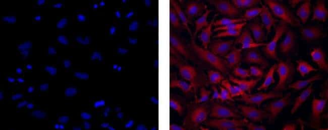 Dynein Mouse, Clone: 74.1, eBioscience™ 100μg; Unlabeled Primary Antibodies D
