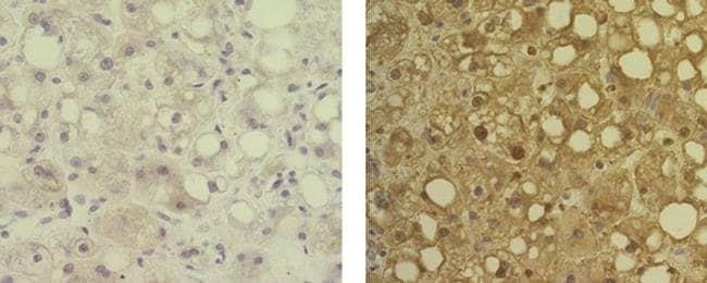Arginase 1 Mouse anti-Human, Clone: sl6arg, eBioscience Invitrogen 25 μg;