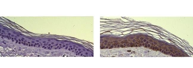Cytokeratin 6, clone: LL020, eBioscience™ 100μg; Unconjugated Cytokeratin 6, clone: LL020, eBioscience™
