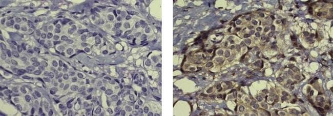 CEP55 Mouse anti-Human, Clone: EMRC10-11-55, eBioscience™ 100 μg; Unconjugated CEP55 Mouse anti-Human, Clone: EMRC10-11-55, eBioscience™