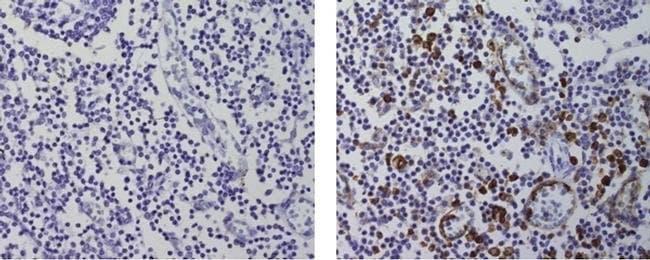Cutaneous Lymphocyte Antigen (CLA) Rat anti-Human, Clone: HECA-452, eBioscience