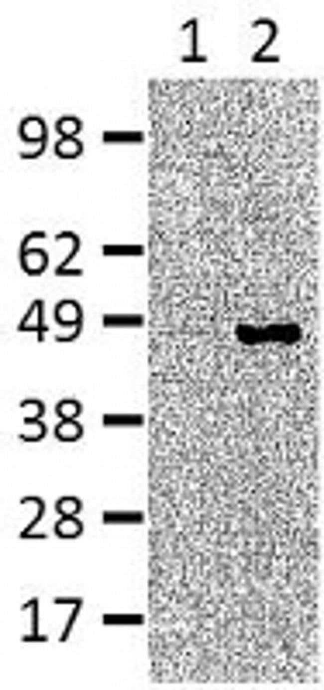 IRF4 Rat anti-Human, Mouse, Clone: 3E4, eBioscience™ 25 μg; Unconjugated IRF4 Rat anti-Human, Mouse, Clone: 3E4, eBioscience™