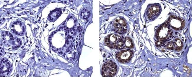 Snail1 Mouse anti-Human, Clone: 20C8, eBioscience Invitrogen 2 mg; Unconjugated:Antibodies