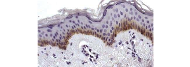 P-cadherin Mouse anti-Human, Clone: 12H6, eBioscience™ 25 μg; Unconjugated P-cadherin Mouse anti-Human, Clone: 12H6, eBioscience™