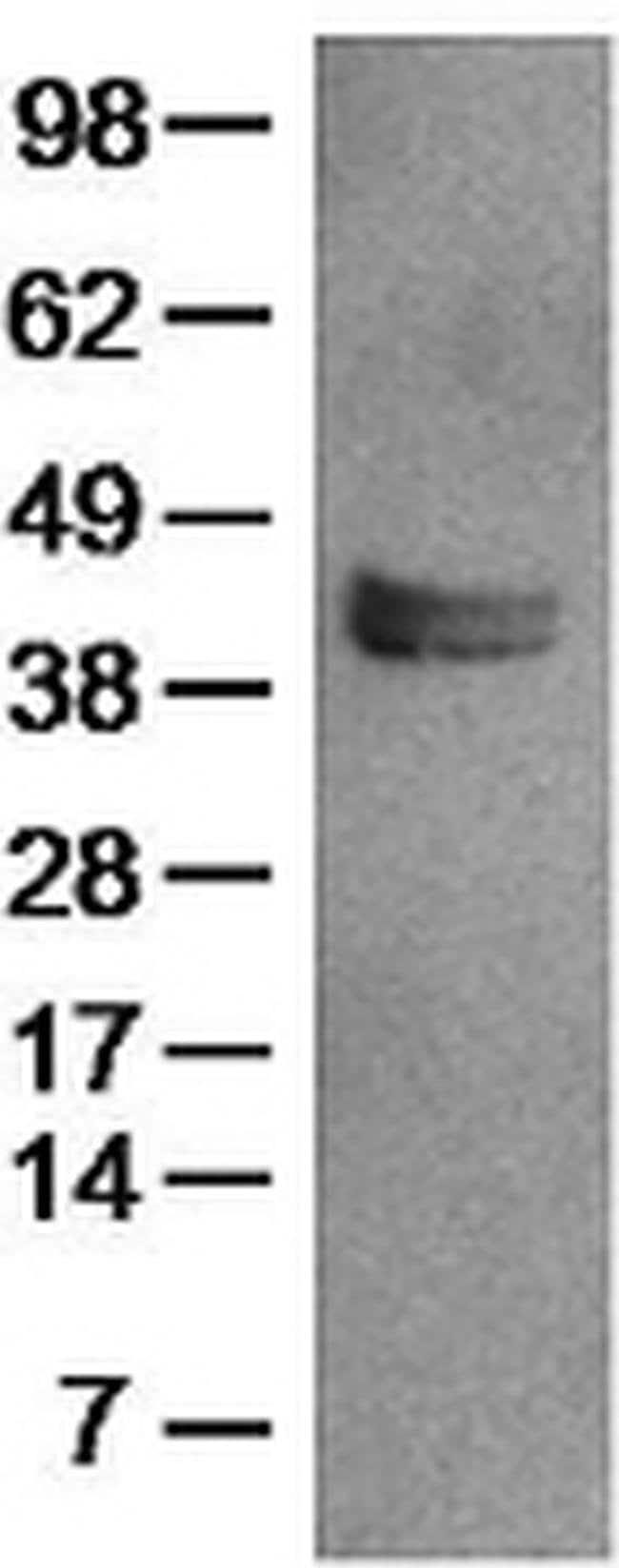 LAP (Latency Associated peptide) Mouse anti-Human, Functional Grade, Clone: VB3A9, eBioscience™ 100 μg; Functional Grade LAP (Latency Associated peptide) Mouse anti-Human, Functional Grade, Clone: VB3A9, eBioscience™