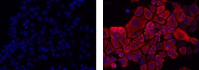 Pan Cytokeratin Mouse anti-Canine, Human, Mouse, Non-human primate, Rabbit,