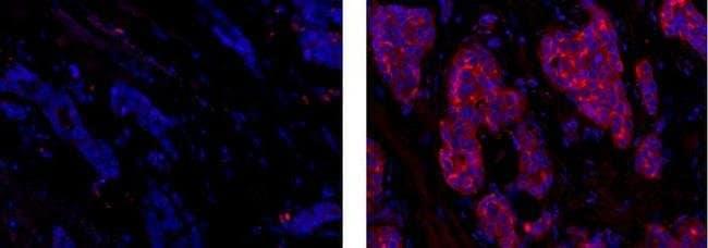 CD227 (Mucin 1) Mouse anti-Human, eFluor® 615, Clone: SM3, eBioscience™ 100 μg; eFluor® 615 CD227 (Mucin 1) Mouse anti-Human, eFluor® 615, Clone: SM3, eBioscience™