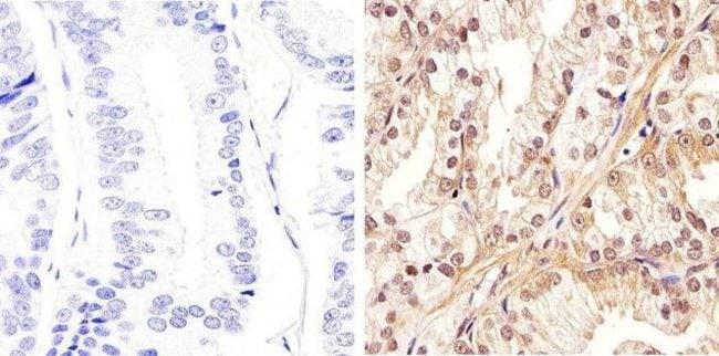 AKT Pan Rabbit anti-Human, Mouse, Polyclonal, Invitrogen™ 100 μL; Unconjugated Primary Antibodies Ad to Ak