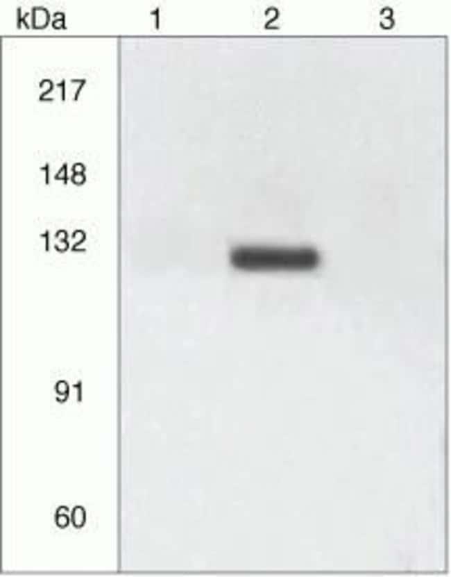 Phospho-CD61 (Tyr773) Rabbit anti-Human, Polyclonal, Invitrogen  100 µL;