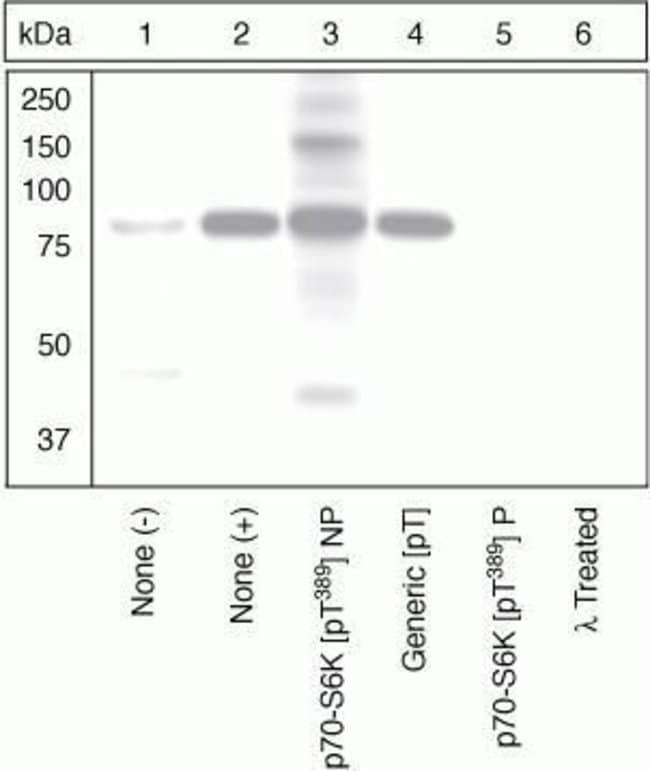 Phospho-p70 S6 Kinase (Thr389) Rabbit anti-Human, Mouse, Rat, Polyclonal,