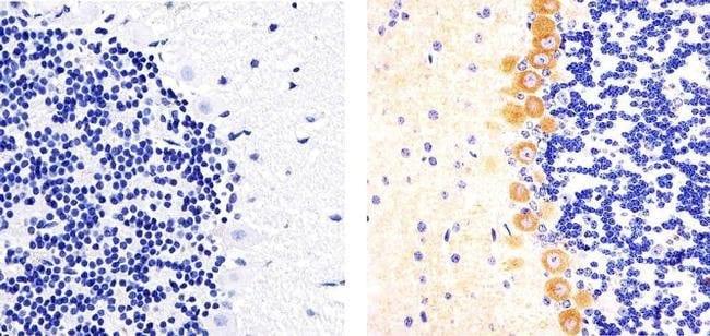 Phospho-PKC gamma (Thr514) Rabbit anti-Human, Mouse, Polyclonal, Invitrogen