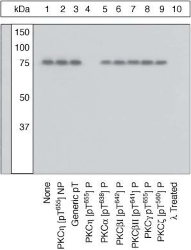 Phospho-PKC eta (Thr655) Rabbit anti-Human, Polyclonal, Invitrogen  100