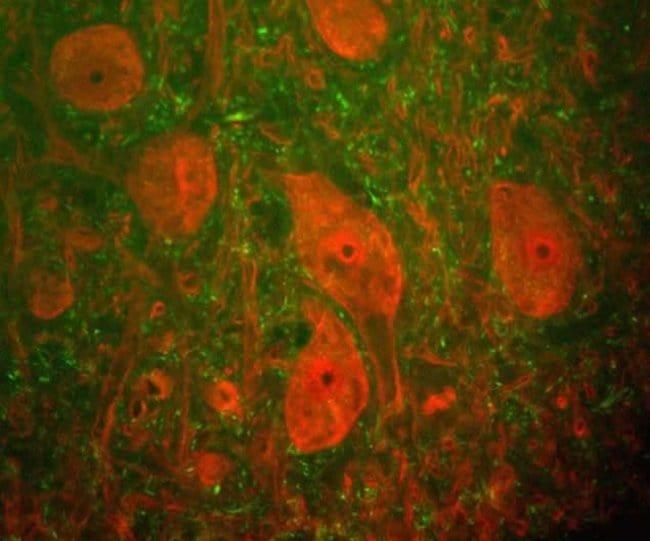PGP9.5 Mouse anti-Rat, Clone: BH7, Invitrogen   100 µL; Unconjugated