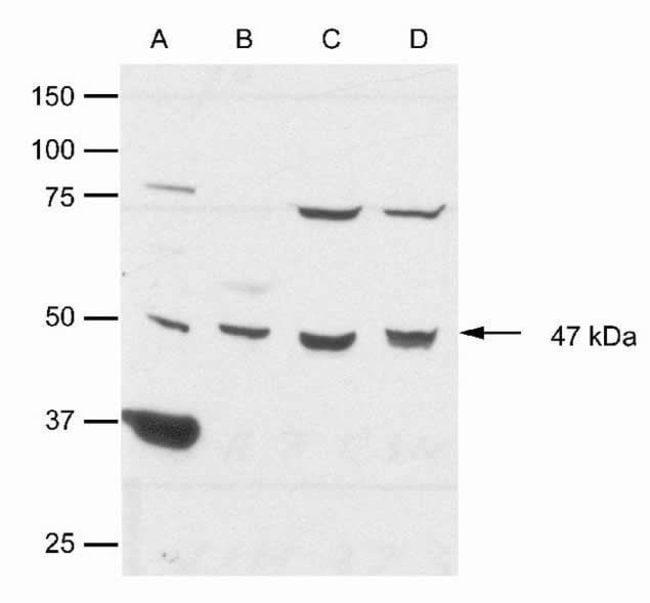CK1 epsilon Rabbit anti-Human, Mouse, Rat, Polyclonal, Invitrogen   100