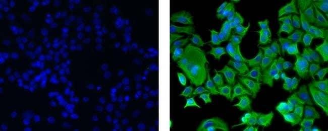 Cytokeratin 18 Mouse anti-Human, Alexa Fluor™ 488, Clone: LDK18, eBioscience™ 100 μg; Alexa Fluor™ 488 Cytokeratin 18 Mouse anti-Human, Alexa Fluor™ 488, Clone: LDK18, eBioscience™